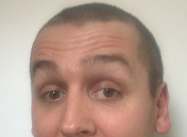 A picture of a man with a shaved head.